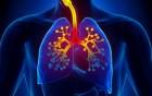 und chronische Bronchitis