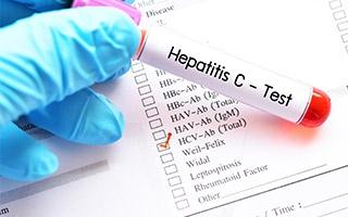 Fortschritte bei der Behandlung von Hepatitis C