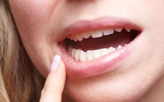 Das hilft bei Zahnfleischentzündung