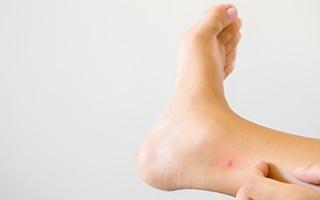 Erste Hilfe bei Mückenstichen